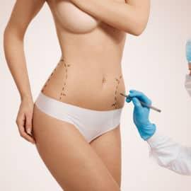 Cuerpo - Cirugía  Estétika Perú
