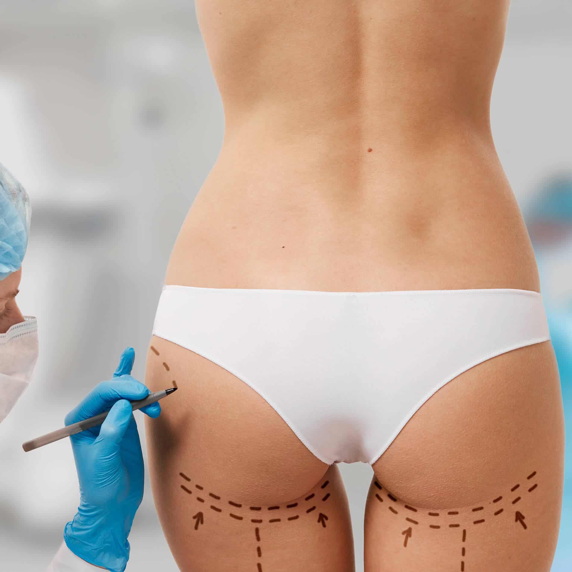 El mejor cuidado post cirugía plástica