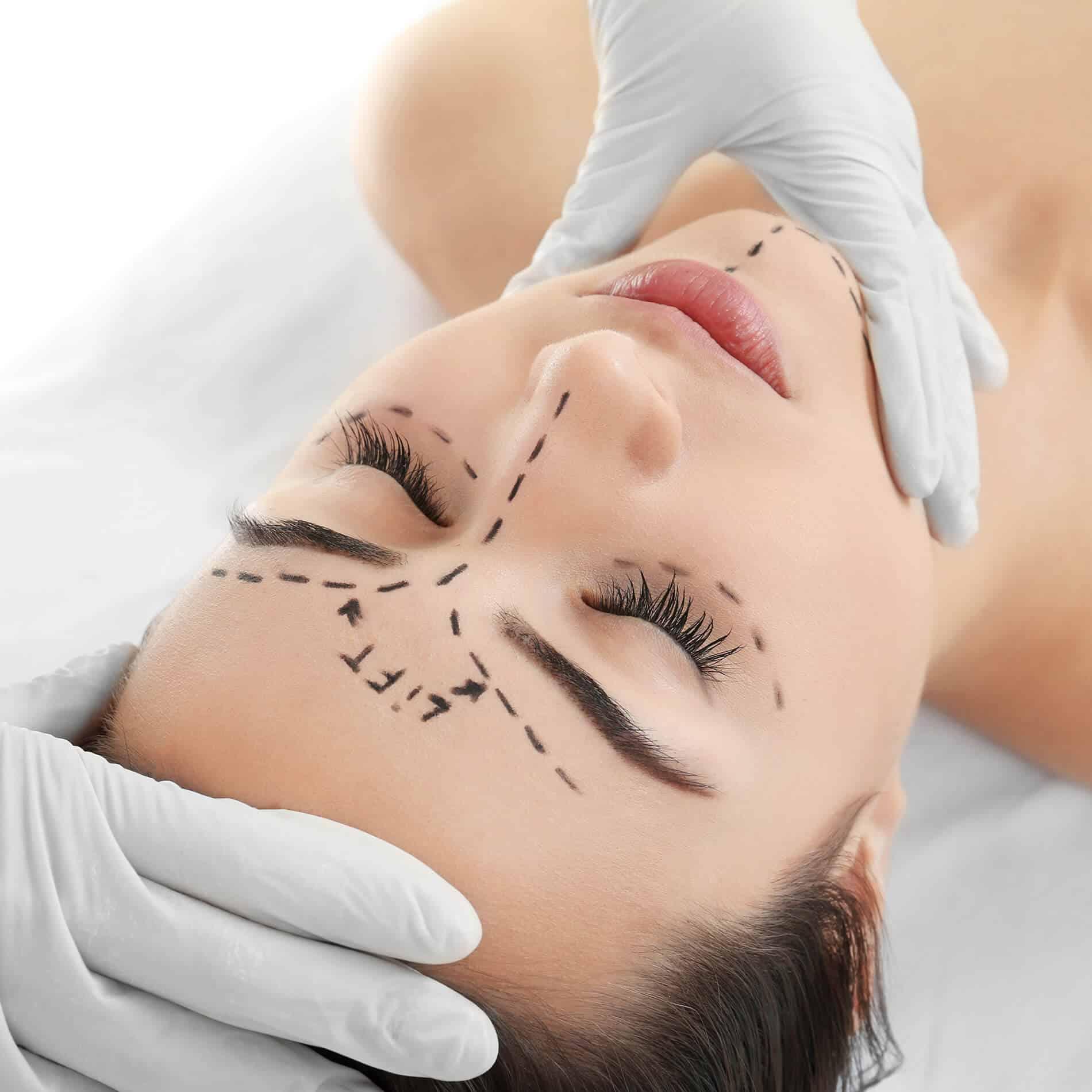 Procedimientos faciales mínimamente invasivos